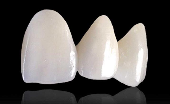審美歯科の種類